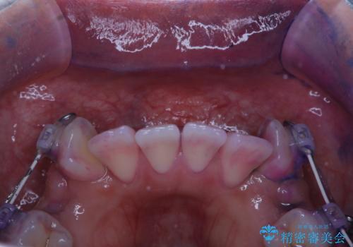 ワイヤー矯正中の歯のクリーニングの治療前