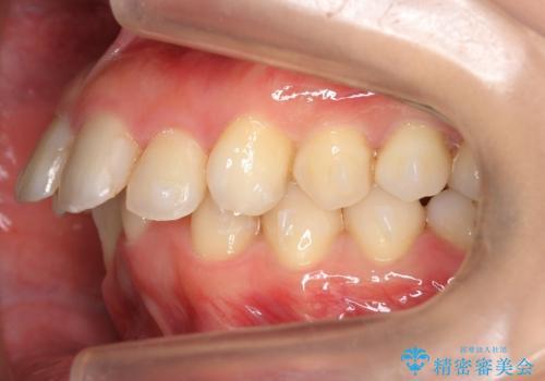 出っ歯 下の歯のガタガタ 下の前歯のみ1本抜歯 マウスピースで1年の治療中