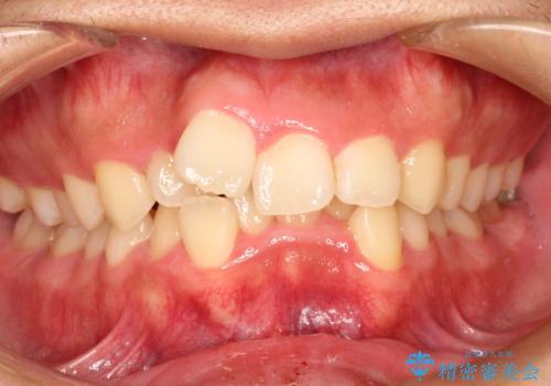 重度のガタガタ ワイヤーによる抜歯矯正の症例 治療前