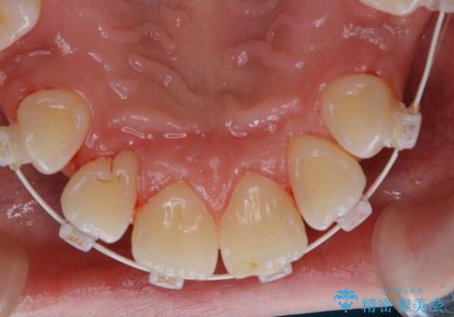 ワイヤー矯正中の歯のクリーニングの治療後