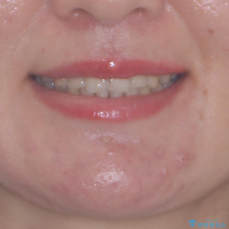 顎が痛くなる咬み合わせが気になる 想定していなかった矯正治療を行うことにの治療後(顔貌)