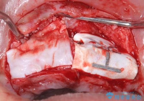 喫煙を再開してインプラント周囲炎に リカバリー治療 50代男性の治療中