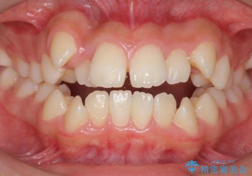 インビザラインチェンジで成功 インビザラインで八重歯の抜歯矯正の症例 治療前