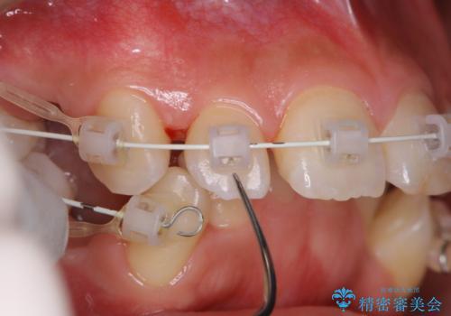 ワイヤー矯正中の歯のクリーニングの治療中