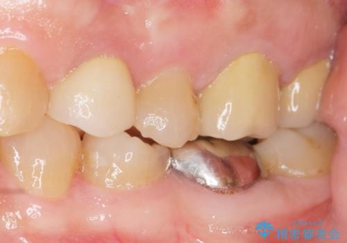 歯ぐきから出る膿 何度治療しても治らない 精密根管治療 50代男性の治療後