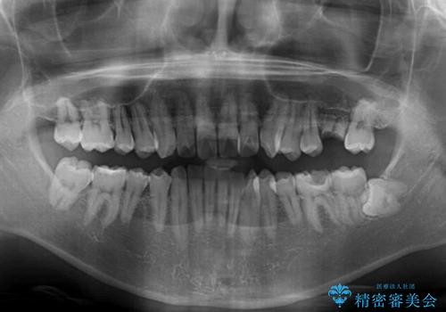 前歯のクロスバイトと抜歯が必要な奥歯の虫歯 インビザラインとインプラント治療の治療前