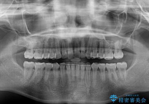 顎が痛くなる咬み合わせが気になる 想定していなかった矯正治療を行うことにの治療後
