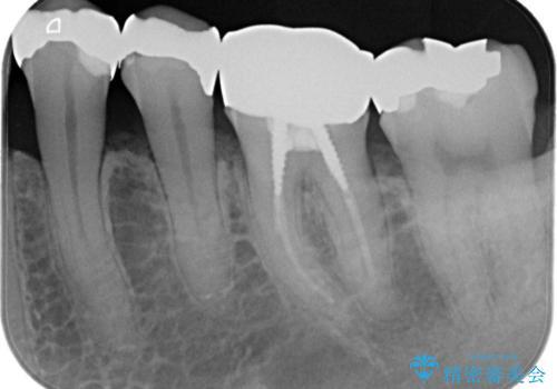 【メタルフリー】白い歯を手に入れたいの治療前