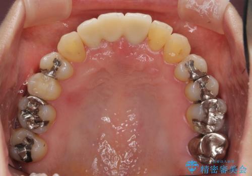 [ 矯正と補綴、総合歯科治療 ]  クロスバイトを避ける前歯部審美ブリッジの治療後