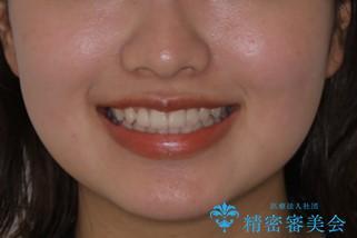 前歯のがたつきをインビザラインで治療の治療前(顔貌)