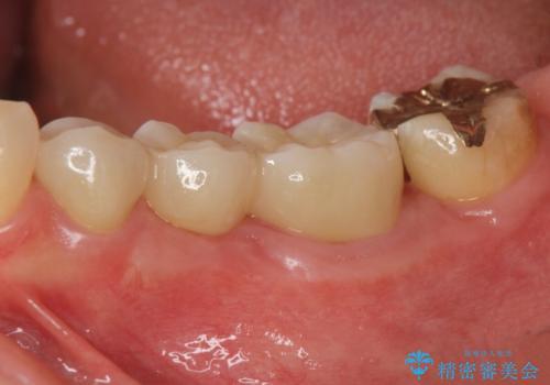 大人になってからの乳歯脱落 セラミックブリッジによる補綴の治療後