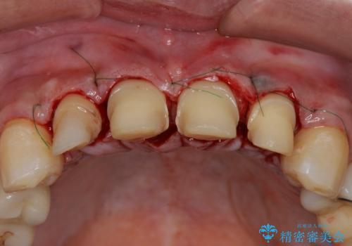 「 放置した虫歯 」 前歯セラミック治療 の治療中
