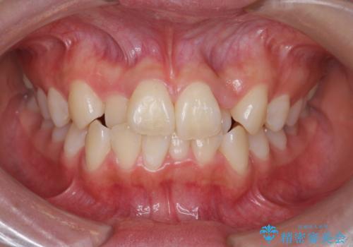 [インビザライン]  前歯のガタつき・すれ違い マウスピース矯正治療の症例 治療前