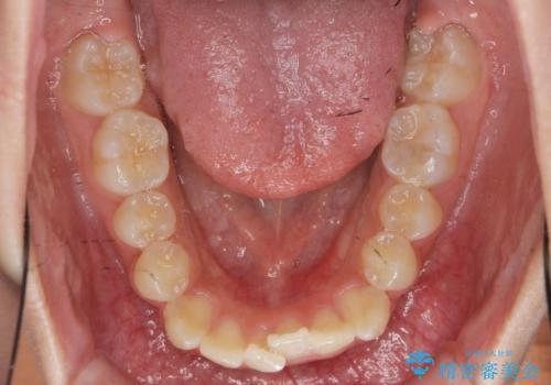 [インビザライン]  前歯のガタつき・すれ違い マウスピース矯正治療の治療前