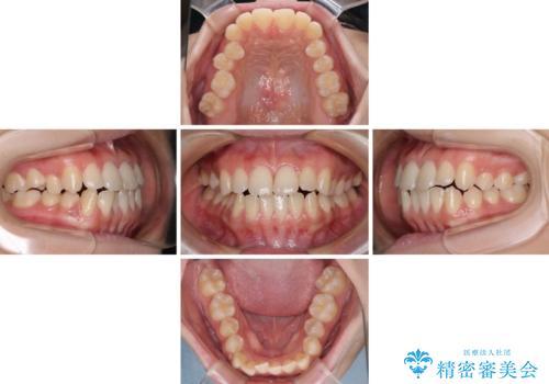 上顎骨拡大を用いたインビザラインによる非抜歯矯正の治療中