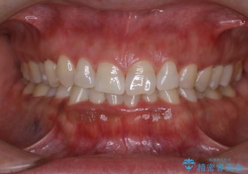 歯を自然な白さにしたい(スペシャルホワイトニング)の治療後