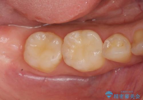 銀歯を白く セラミックインレー治療の症例 治療後