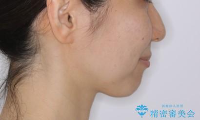 上下の真ん中を合わせて横顔シルエットも改善の治療後(顔貌)