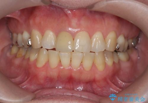 セラミッククラウン 歯ぐきの黒ずみの改善の治療後