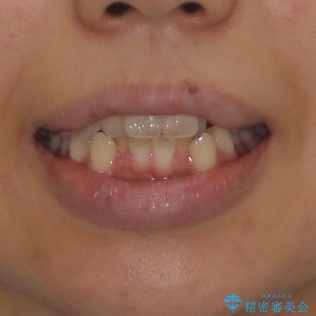 気になる八重歯を治したい 目立たないワイヤーでの抜歯矯正の治療前(顔貌)