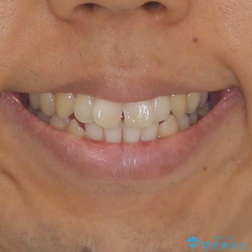 上下前歯が接触しない ワイヤー装置による奥歯の咬み合わせ改善の治療前(顔貌)