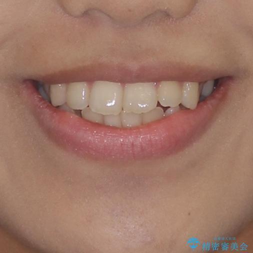 上顎骨拡大を用いたインビザラインによる非抜歯矯正の治療前(顔貌)