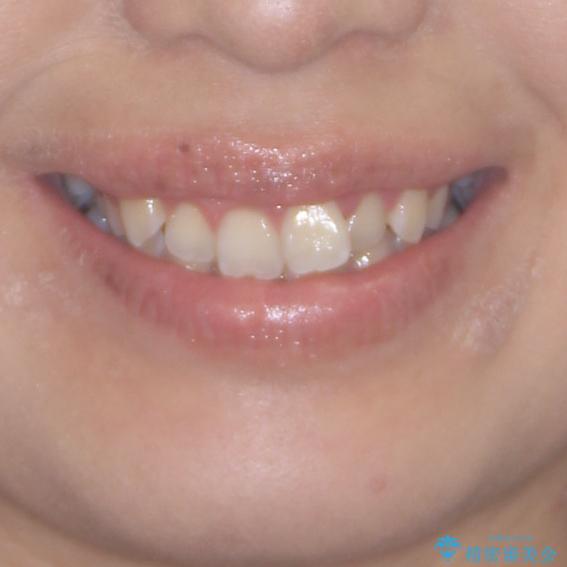 前歯のデコボコをインビザラインでスッキリとの治療前(顔貌)