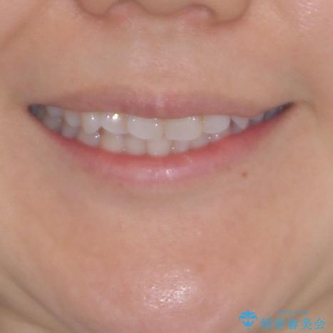 長年気にしていた前歯 インビザラインで目立たず改善の治療前(顔貌)