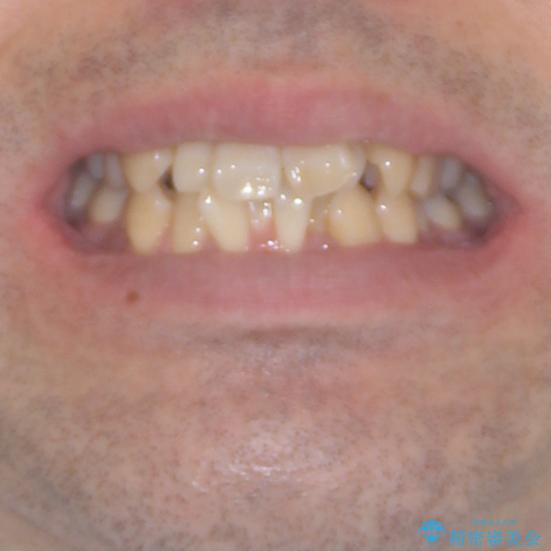 ものが挟まる 著しい叢生を解消 ワイヤー装置による抜歯矯正の治療前(顔貌)