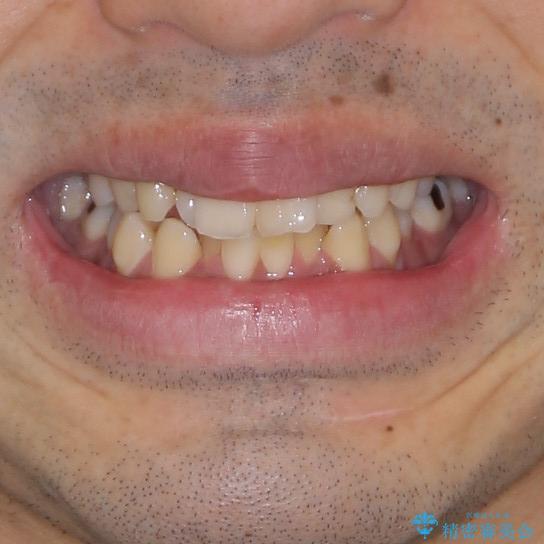 下顎骨が顕著に右側にずれている インビザラインによる咬合改善の治療前(顔貌)