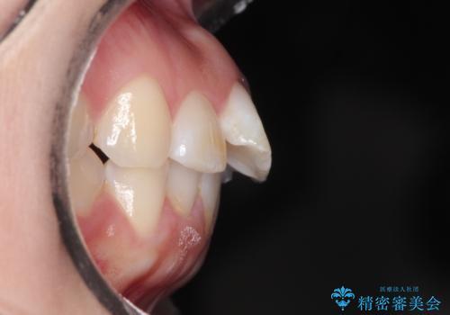 【インビザライン】前歯が出ているのを治したいの治療前
