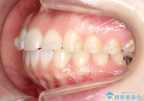 【インビザライン】前歯が出ているのを治したいの治療中