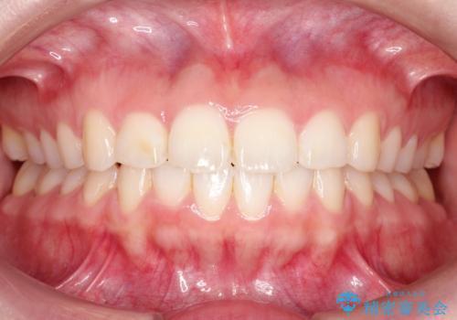 【インビザライン】前歯が出ているのを治したいの治療後