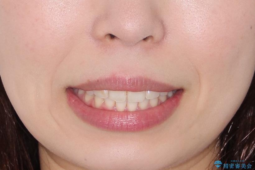 【インビザライン】前歯が出ているのを治したいの治療後(顔貌)