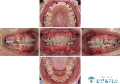 気になる八重歯を治したい 目立たないワイヤーでの抜歯矯正の治療中