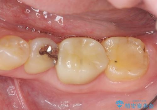 噛むと痛い銀歯 根管治療を伴うやりかえの治療後