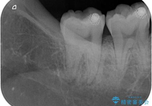 【根管治療】ズキズキ痛い歯の治療の治療前