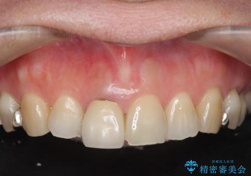 セラミッククラウン 歯ぐきの黒ずみの改善の症例 治療前