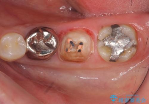 大人になってからの乳歯脱落 セラミックブリッジによる補綴の治療中