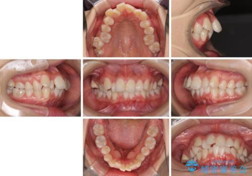口元の突出感を改善 2年弱での抜歯矯正の治療前