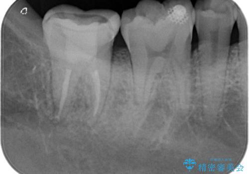 【根管治療】ズキズキ痛い歯の治療の治療後