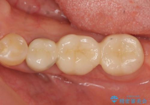 [ 歯牙破折 ]  違和感のある大臼歯 ブリッジ治療の治療後