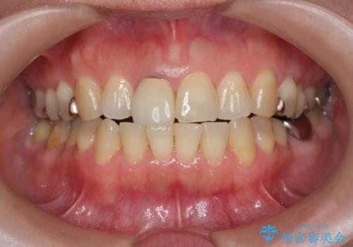 セラミッククラウン 歯ぐきの黒ずみの改善の治療前