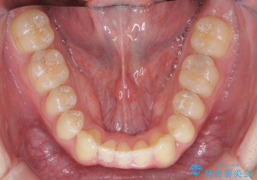 [ Three-incisor ]  歯肉退縮した歯を抜去しマウスピース治療で改善の治療後