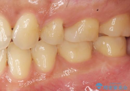 [ 矯正治療後のセラミック治療 ]  セラミックインレーで銀歯を白くの症例 治療後
