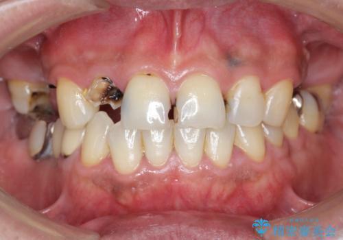 「 放置した虫歯 」 前歯セラミック治療 の治療前