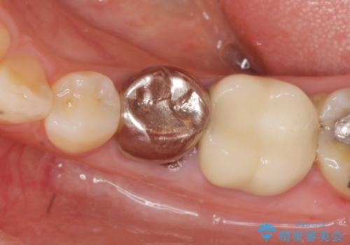 大人になってからの乳歯脱落 セラミックブリッジによる補綴の治療前