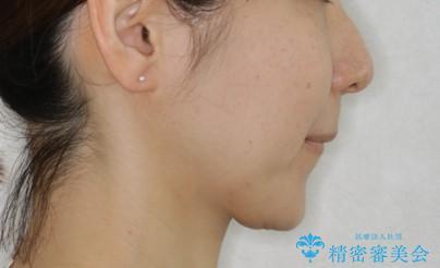 上下の真ん中を合わせて横顔シルエットも改善の治療前(顔貌)