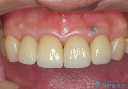 「 放置した虫歯 」 前歯セラミック治療 の治療後