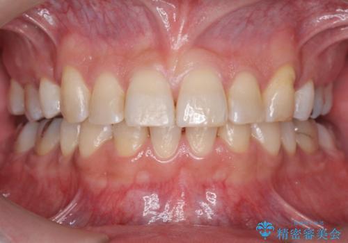 前歯だけ治したい インビザライン・ライト 30代男性の症例 治療後